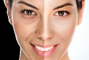 microdermabrasie, huidverbetering, schoonheidssalon, zuurstoftherapie