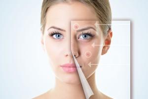 schoonheidssalon schoonhoven huiderbetering huidproblemen