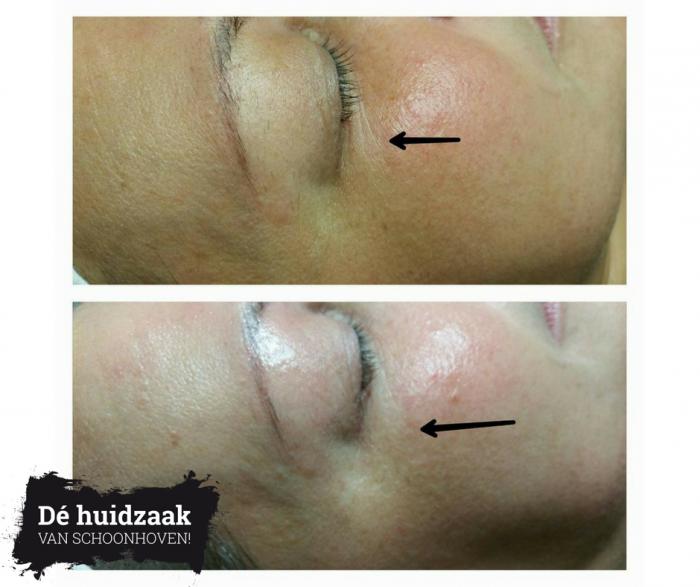 Oxygeneo voor en na, huidverbetering, huidveroudering, rimpels