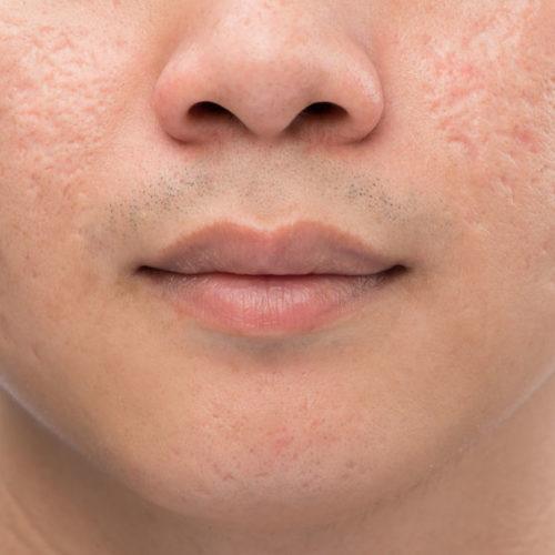 littekens, acne, man, huid, salon exclusief