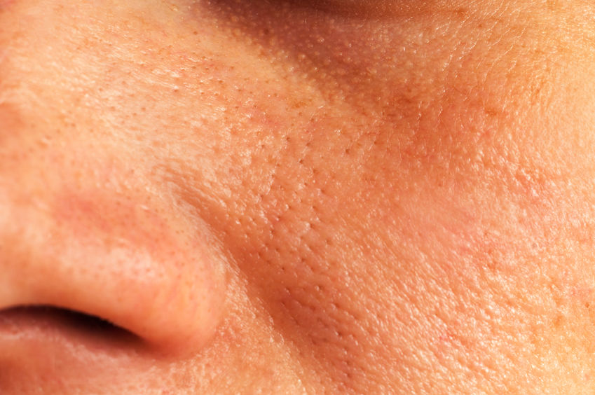 Vette huid, grove porie, structuur, salon exclusief